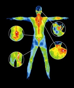 http://www.aboutyourhealthsc.com/thermography